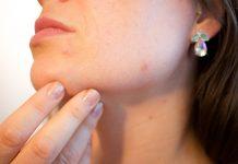 5 rzeczy, o których powinnaś pamiętać, mając trądzik