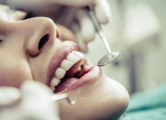 Jak często należy odwiedzać dentystę